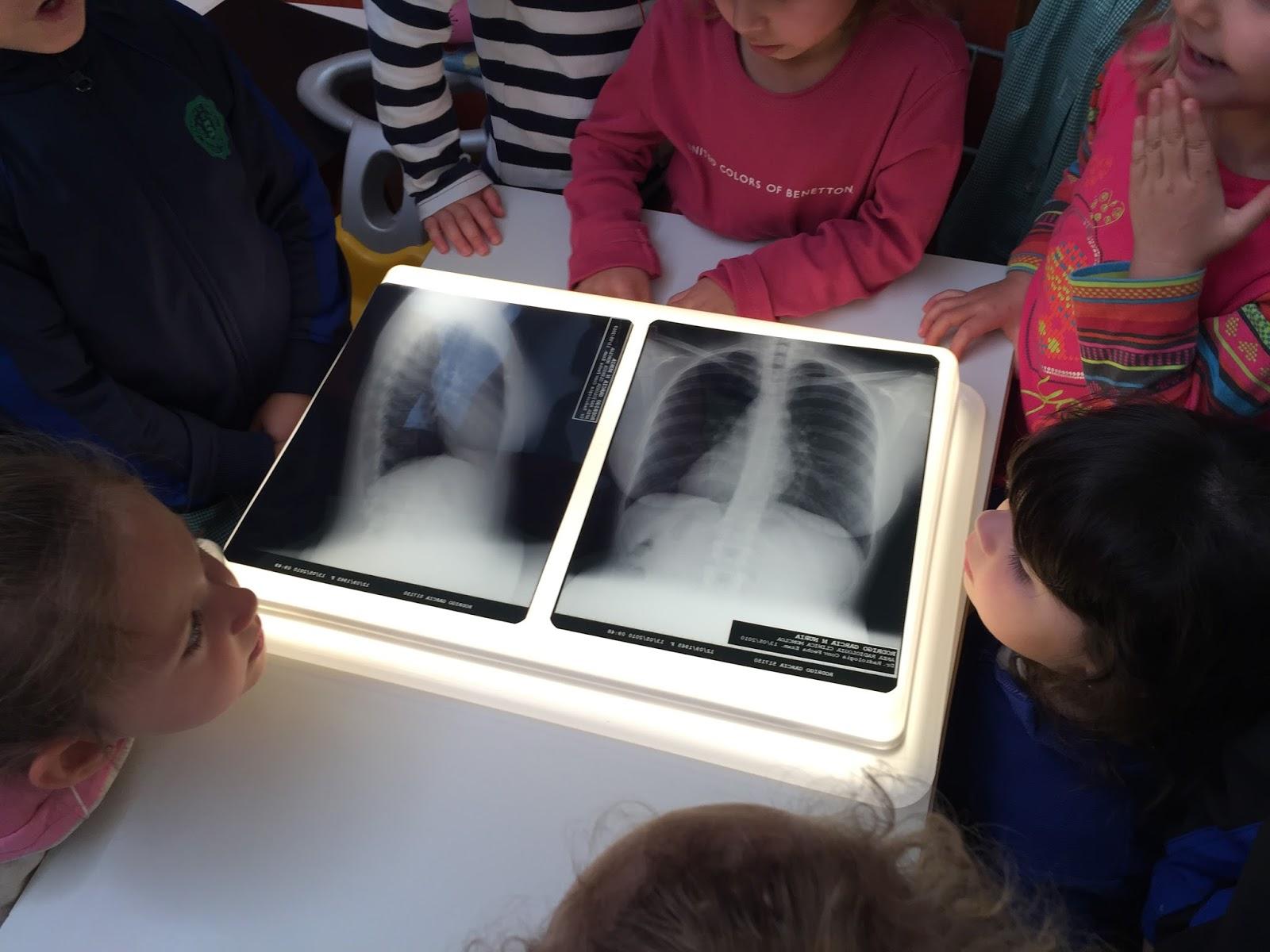 mesa de luz con radiografía